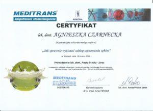 szynowanie zębów - certyfikat specjalisty stomatologa Medicodent Kielce