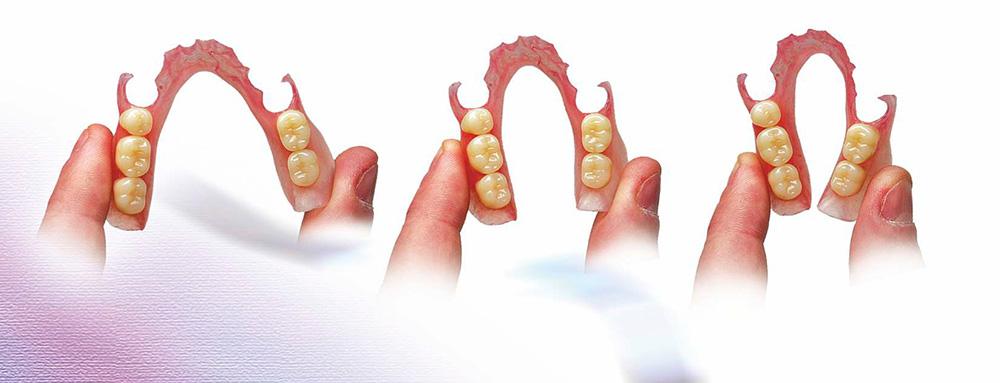 protetyka - protezy ruchome (wyjmowane)
