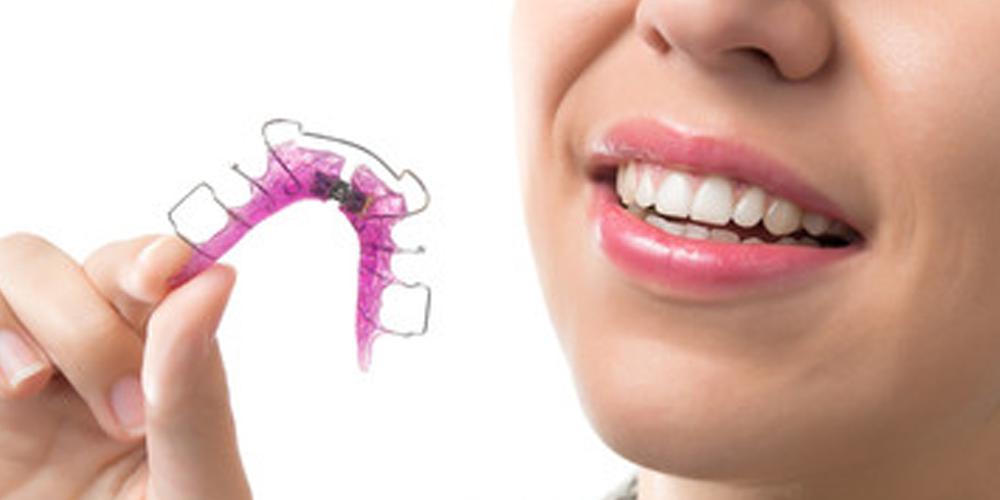 ortodoncja - aparat retencyjny ruchomy
