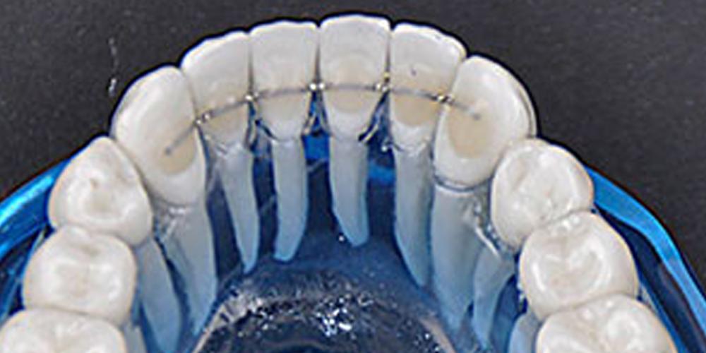 ortodoncja - aparat retencyjny stały