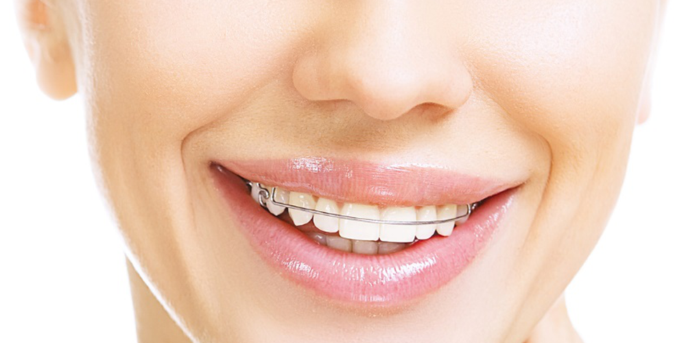 ortodontyczny aparat retencyjny zdejmowany