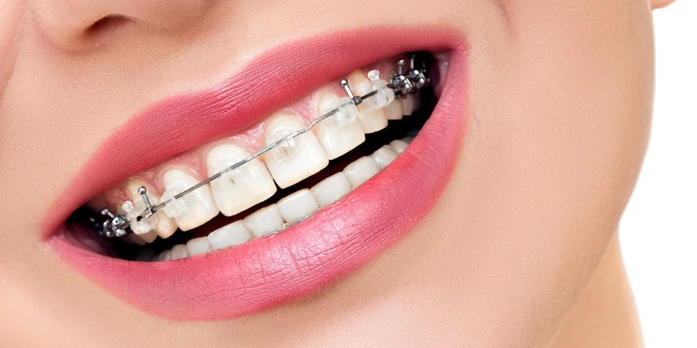 aparat ortodontyczny stały - Medicodent Kielce