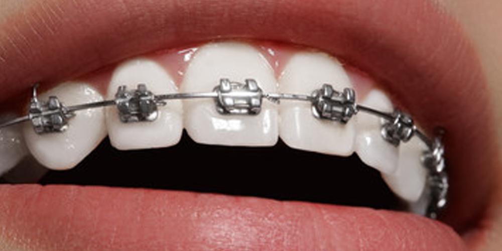 etapy leczenia ortodontycznego - aparat ortodontyczny