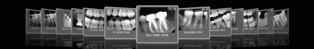 obrazowanie stomatologiczne - prześwietlenie zębów RTG