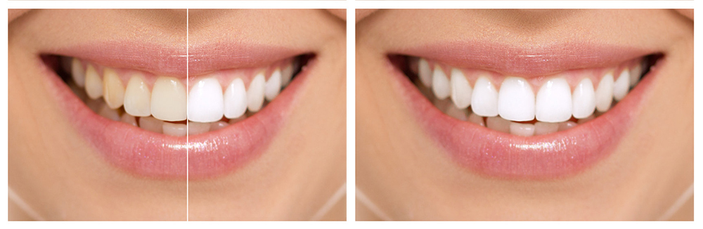 zadbaj o swój uśmiech - wybielanie zębów przed i po