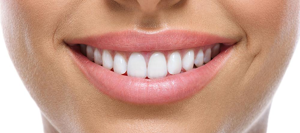 wybielanie zębów Medicodent Kielce