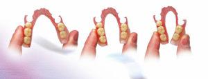 Protetyka - protezy Medicodent Kielce