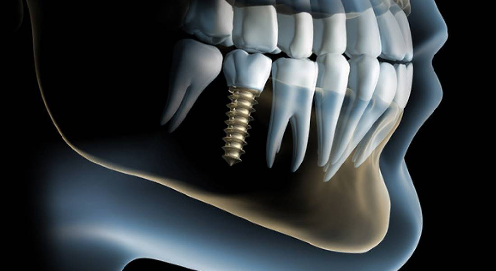 implanty stomatologiczne Medicodent Kielce