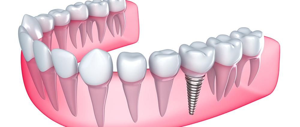 Implanty schemat