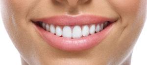 stomatologia estetyczna - wybielanie zębów
